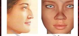 تفاوت جراحی بینی گوشتی و استخوانی