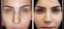 دستورات بعد عمل جراحی زیبایی بینی