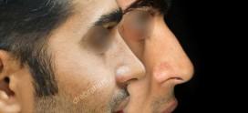 جراحی بینی طبیعی مردانه چگونه است؟
