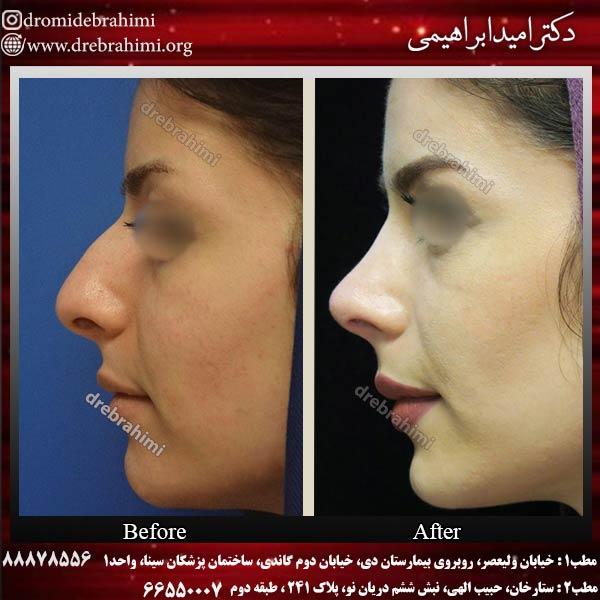 نمونه جراحی بینی 2