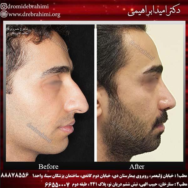 نمونه جراحی بینی 7