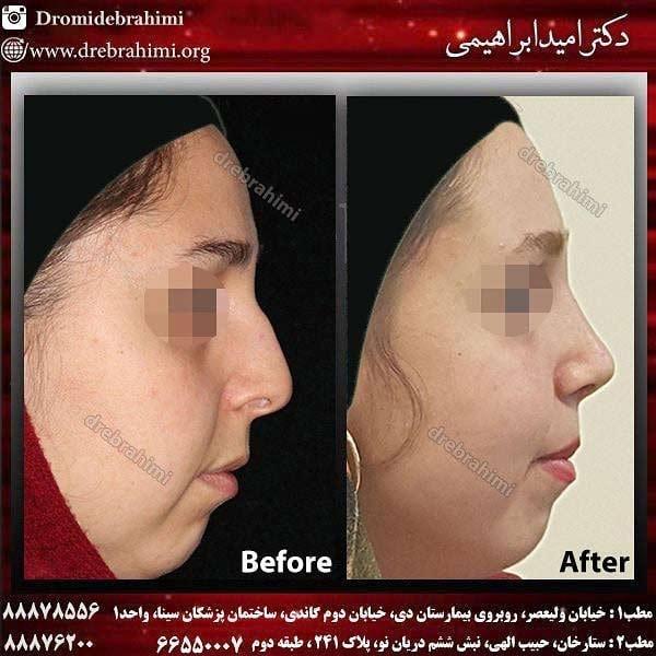 نمونه جراحی بینی 4