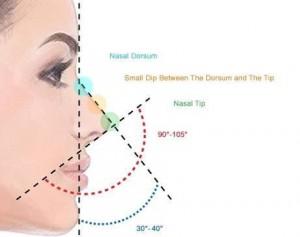 انواع مدل جراحی زیبایی بینی