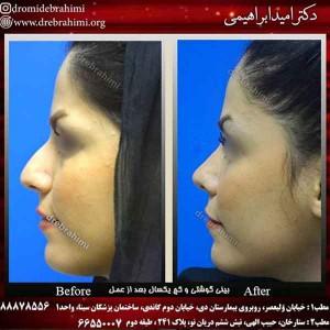 توصیه های قبل از عمل جراحی زیبایی بینی