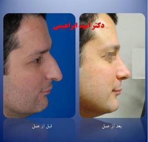 جراحی بینی طبیعی توسط دکتر امید ابراهیمی بهترین جراح بینی طبیعی در تهران