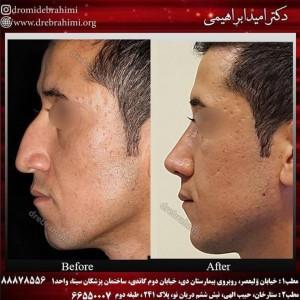 جراحی بینی طبیعی، توسط دکتر امید ابراهیمی. بهترین جراح بینی طبیعی.