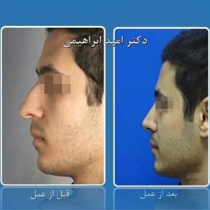 جراحی بینی طبیعی، توسط دکتر امید ابراهیمی، بهترین جراح طبیعی کار تهران
