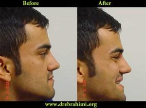 جراح بینی 12