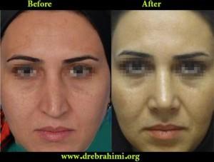 جراح بینی 15