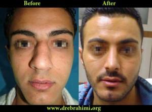 آیا جراحی بینی های گوشتی مشکل تر است؟