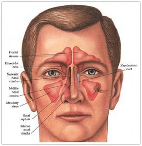سینوزیت و جراحی سینوس