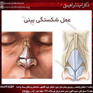 عمل شکستگی بینی