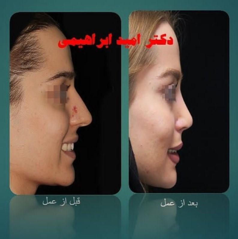 جراحی بینی استخوانی توسط دکتر امید ابراهیمی بهترین جراح بینی