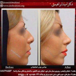 5 توصیه برای عمل جراحی زیبایی بینی ایده آل