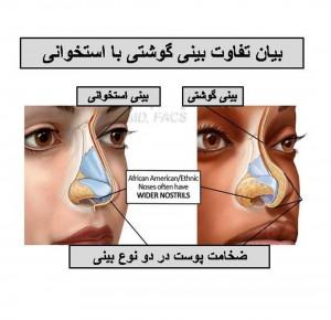 تفاوت بین بینی گوشتی و استخوانی