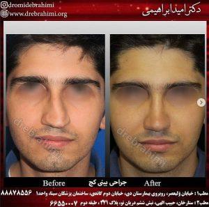 جراحی انحراف بینی توسط دکتر امید ابراهیمی