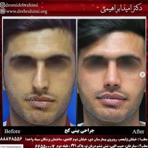 جراحی بینی کج توسط دکتر امید ابراهیمی بهترین جراح بینی