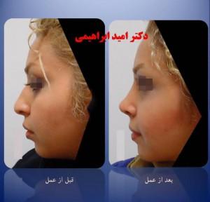 نمونه جراحی بینی استخوانی از بهترین جراح بینی استخوانی دکتر امید ابراهیمی