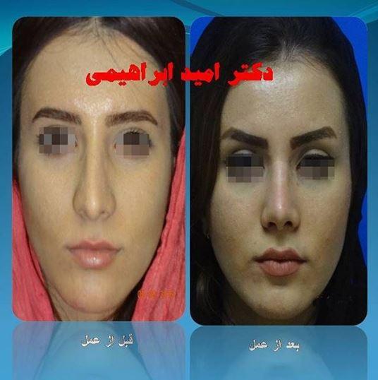 جراحی بینی گوشتی توسط دکتر امید ابراهیمی بهترین جراح بینی