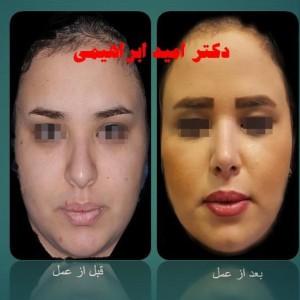 جراحی بینی گوشتی توسط دکتر امید ابراهیمی بهترین جراح بینی گوشتی تهران