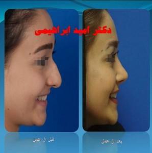 جراحی بینی گوشتی توسط بهترین جراح بینی گوشتی دکتر امید ابراهیمی