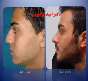 جراحی بینی گوشتی توسط بهترین جراح بینی گوشتی تهران دکتر امید ابراهیمی