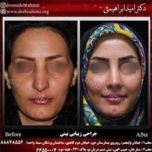 بهترین جراح بینی دکتر امید ابراهیمی