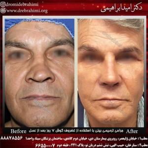 بهترین جراح بینی، جراحی بینی طبیعی ترمیمی توسط بهترین جراح ترمیمی بینی در تهران، دکتر امید ابراهیمی