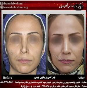 جراحی بینی ترمیمی توسط دکتر امید ابراهیمی بهترین جراح بینی در تهران،جراحی بینی ترمیمی