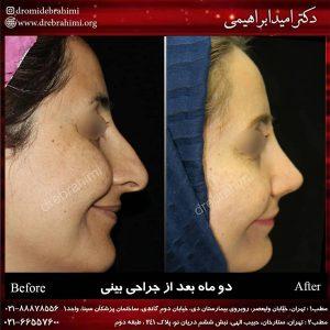 جراحی زیبایی بینی چیست