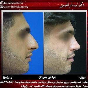 جراحی بینی کج توسط جراح بینی خوب دکتر امید ابراهیمی