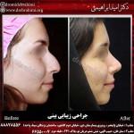 بهترین جراح بینی تهران
