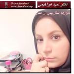 عمل بینی تهران