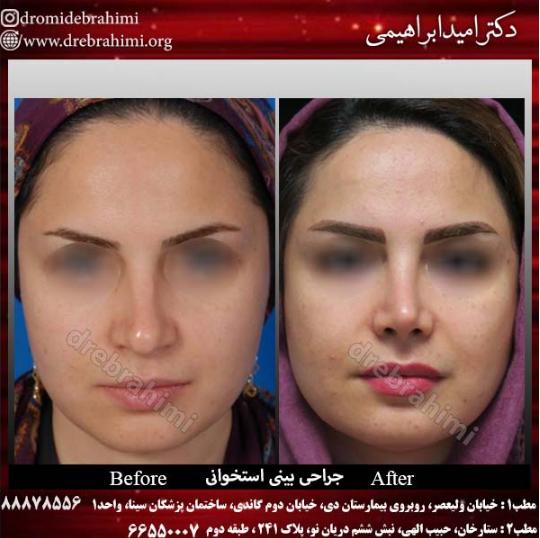 جراحی بینی استخوانی توسط دکتر امید ابراهیمی بهترین جراح بینی استخوانی در تهران