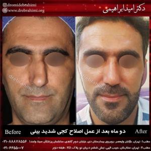 جراحی بینی کج توسط دکتر امید ابراهیمی بهترین جراح انحراف بینی در تهران