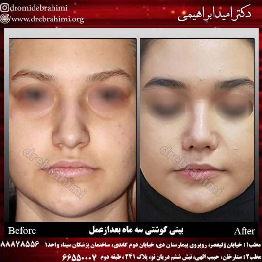 جراحی بینی گوشتی توسط دکتر امید ابراهیمی بهترین جراح بینی گوشتی در تهران