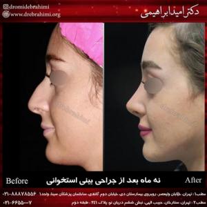 جراحی زیبایی بینی استخوانی توسط دکتر امید ابراهیمی