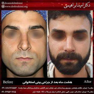 جراحی زیبایی بینی توسط دکتر امید ابراهیمی بهترین جراح بینی