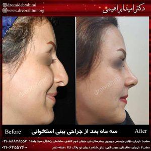 عمل جراحی زیبایی بینی استخوانی توسط دکتر امید ابراهیمی