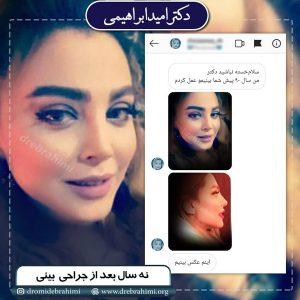 جراحی بینی استخوانی توسط بهترین جراح بینی در تهران