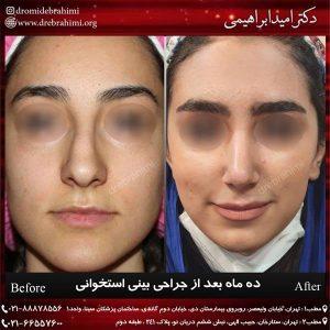 عمل بینی استخوانی توسط دکتر امید ابراهیمی بهترین جراح بینی استخوانی در تهران
