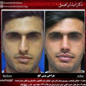 جراحی انحراف بینی توسط دکتر امید ابراهیمی بهترین جراح بینی