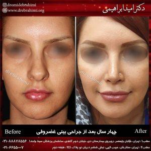جراحی پلاستیک بینی طبیعب توسط دکتر امید ابراهیمی