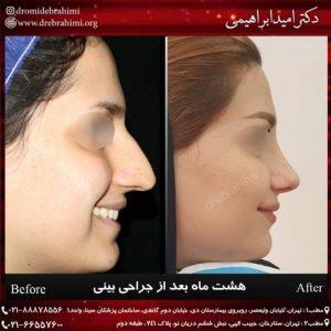عمل بینی طبیعی توسط دکتر امید ابراهیمی بهترین جراح طبیعی کار در ایران