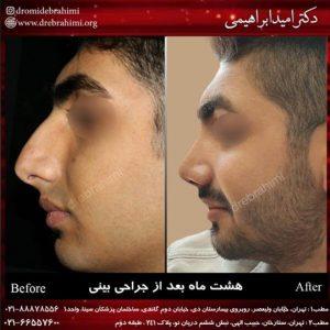 عمل بینی طبیعی مردانه توسط دکتر امید ابراهیمی بهترین جراح بینی طبیعی در تهران
