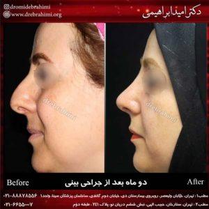 عمل طبیعی بینی توسط دکتر امید ابراهیمی بهترین جراح طبیعی کار در تهران