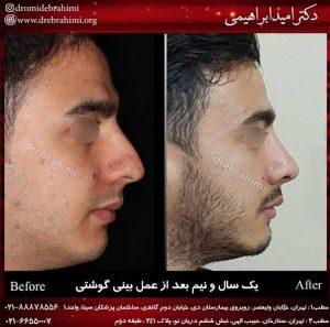 جراحی بینی طبیعی مردانه توسط دکتر امید ابراهیمی