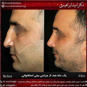 جراحی بینی طبیعی مردانه توسط دکتر امید ابراهیمی بهترین جراح بینی طبیعی کار در ایران