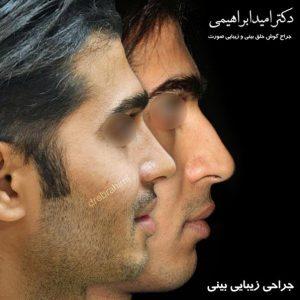 جراحی طبیعی بینی مردانه توسط دکتر امید ابراهیمی