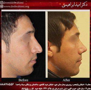 جراحی طبیعی بینی مردانه